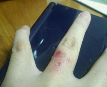 結婚指輪でアレルギー